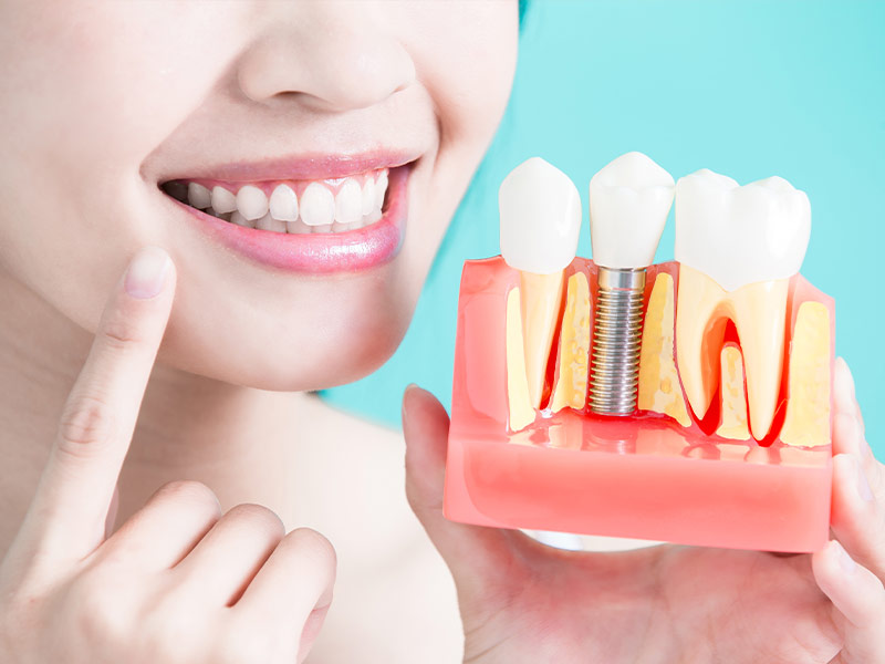 -dental-implants