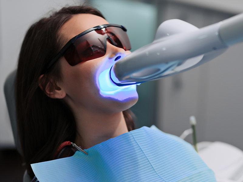 -teeth-whitening